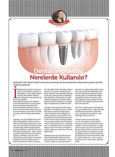 Zerrin Tüfekçi - Dental İmplantlar Nerelerde Kullanılır?