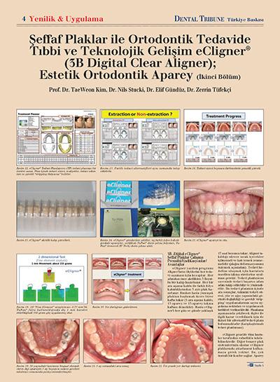 Zerrin Tüfekçi - Şeffaf Plaklar İle Ortodontik Tedavide Tıbbi ve Teknolojik Gelişim